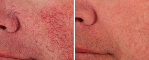 Rosacea treatments pretoria