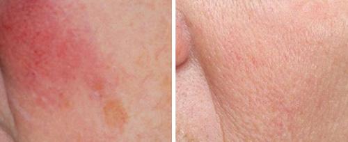 rosacea dermatologist pretoria