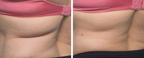 cooltech fat reduction pretoria