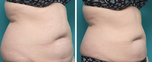 fat freezing treatment pretoria