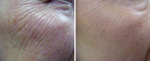 Skin Clinic Pretoria
