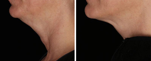 skin tightening pretoria